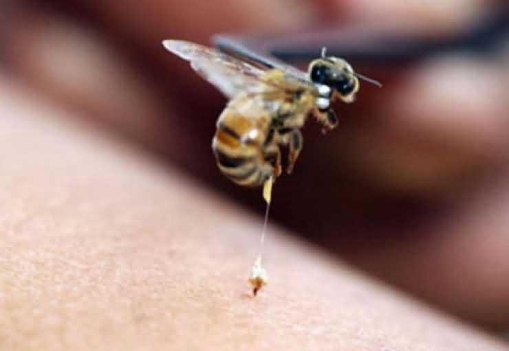 Bărbat la un pas de moarte după ce a fost înțepat de o albină