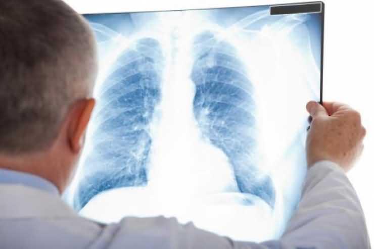 Numărul bolnavilor TBC, în scădere în judeţul Satu Mare
