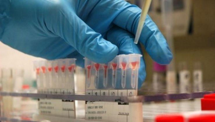 Deocamdată, 19 laboratoare private au încheiat contract cu CJAS pentru analize gratuite